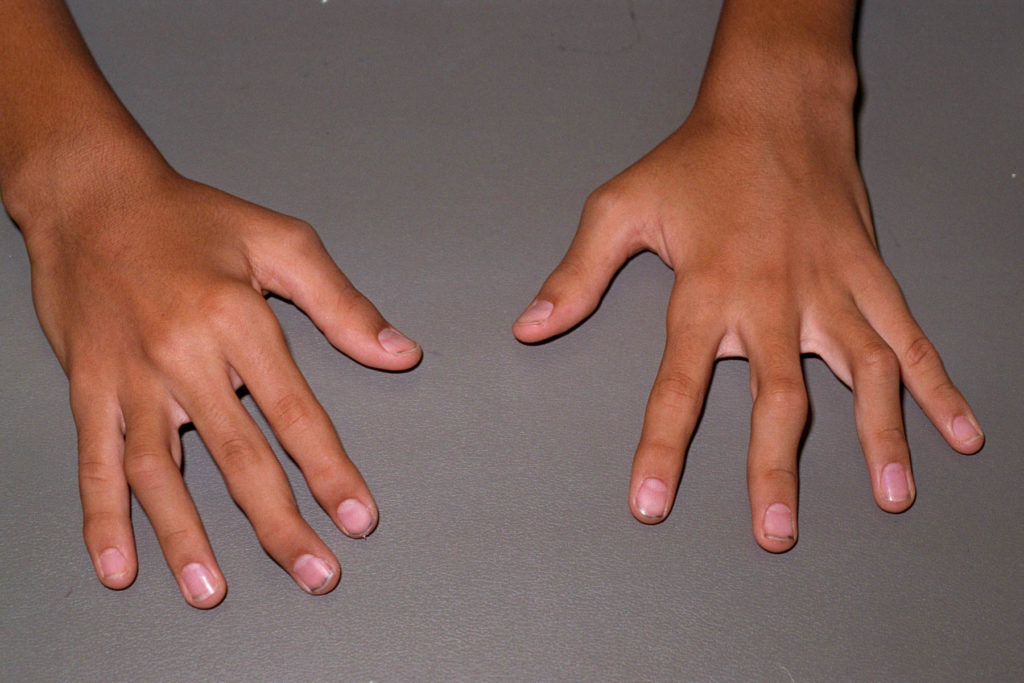 Ревматоидный артрит