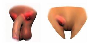 Увеличение паховых лимфатических узлов