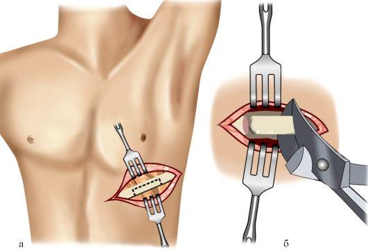 Удаления осколков кости