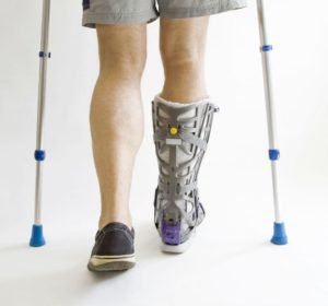 Сразу после снятия гипса ходить без помощи костылей не рекомендуется