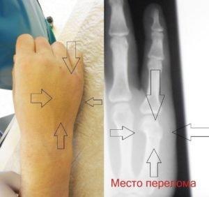 Рентгенография поврежденного фрагмента конечности