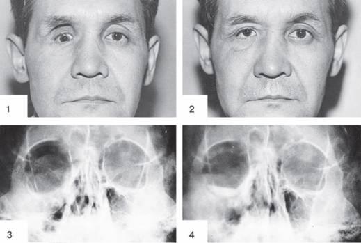 Перелом костей нижней стенки орбиты глаза