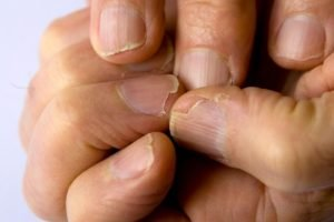 Ломкость ногтевых пластин