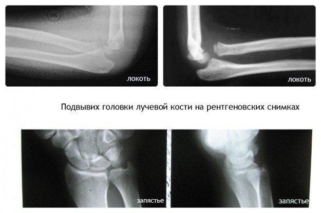 Подвывих головки лучевой кости у детей