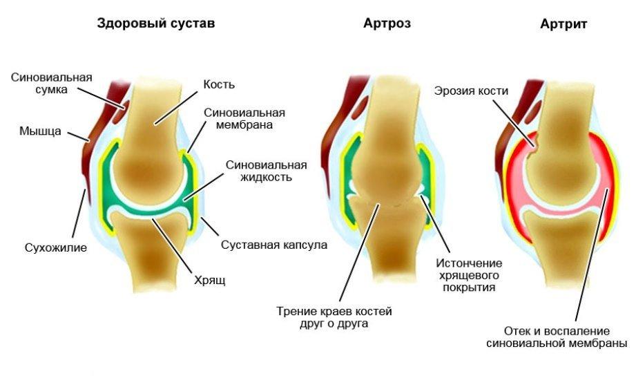 Изменения в суставах