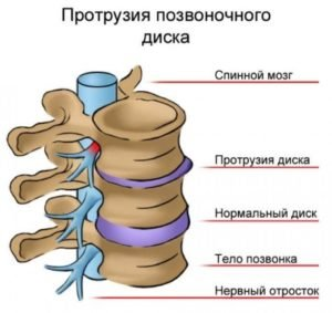 Что такое циркулярная протрузия