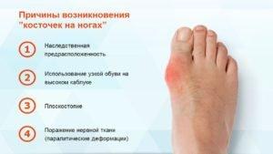 Причины развития косточки на ноге