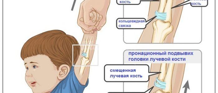 Локтевая и лучевая кости располагаются в предплечье