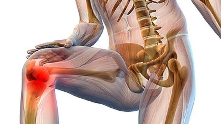 Последствием постоянного перенапряжения является тендинит коленного сочленения