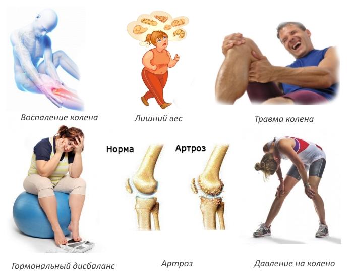 Причины развития синдрома Гоффа