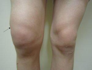 Отечность в районе коленного сустава