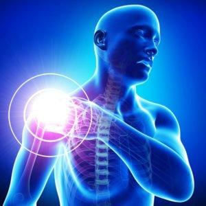 Плечевой артрит