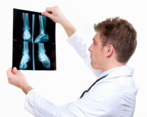Показаться травматологу
