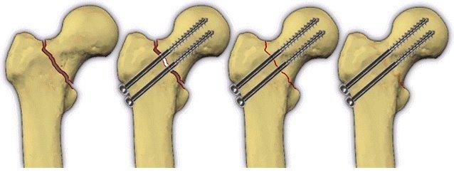 Фиксация тела кости и головки штифтами