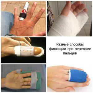 Варианты фиксации пальца