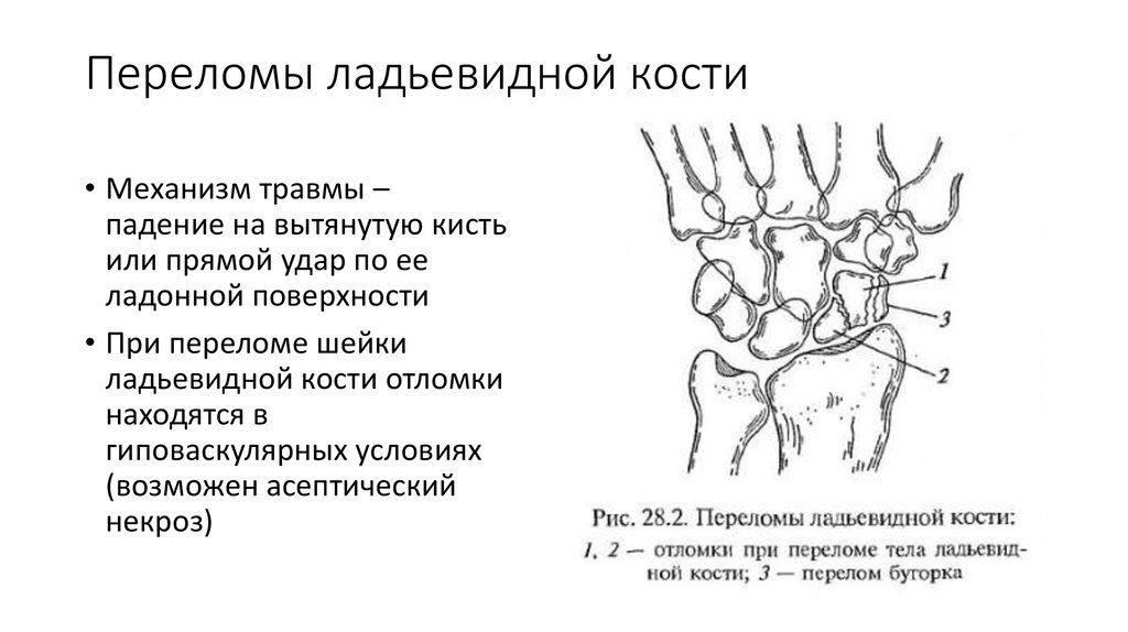 Переломы ладьевидной кости