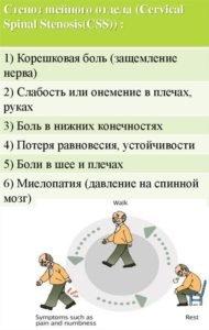 Симптомы стеноза