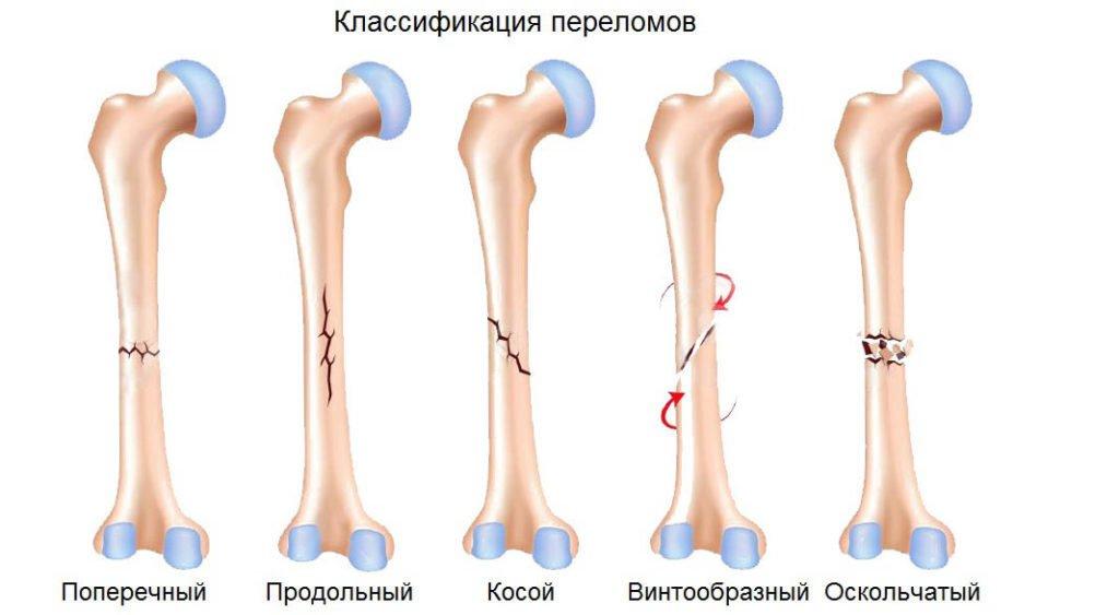 Классификация переломов