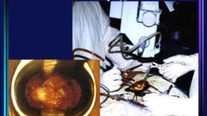 При работе хирургов используются сверхмощные микроскопы