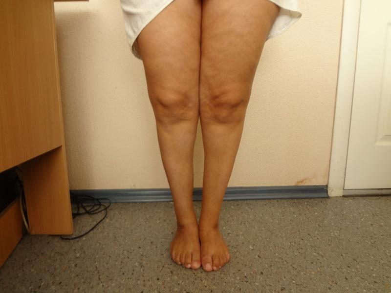 Признаки поражения суставов