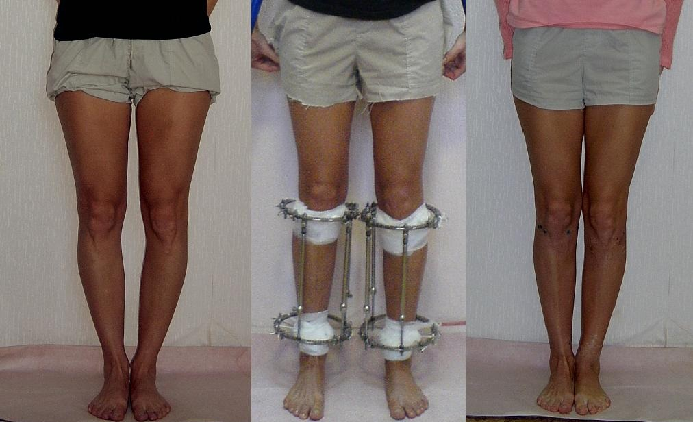 Аппараты для выравнивания ног