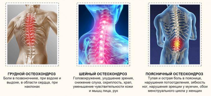 Отделы остеохондроза
