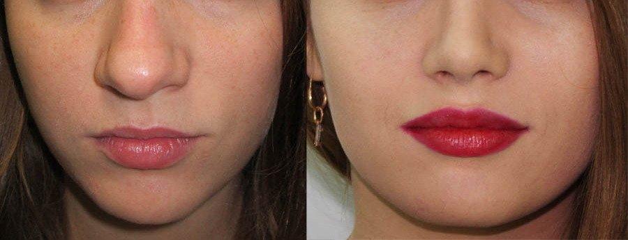 Изменяется ширина носа