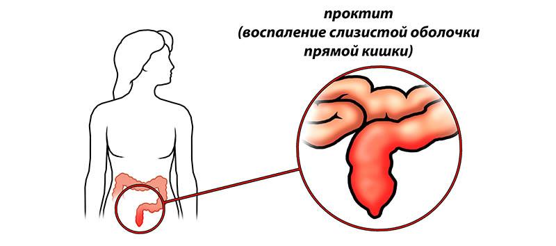 Растяжение капсул суставов
