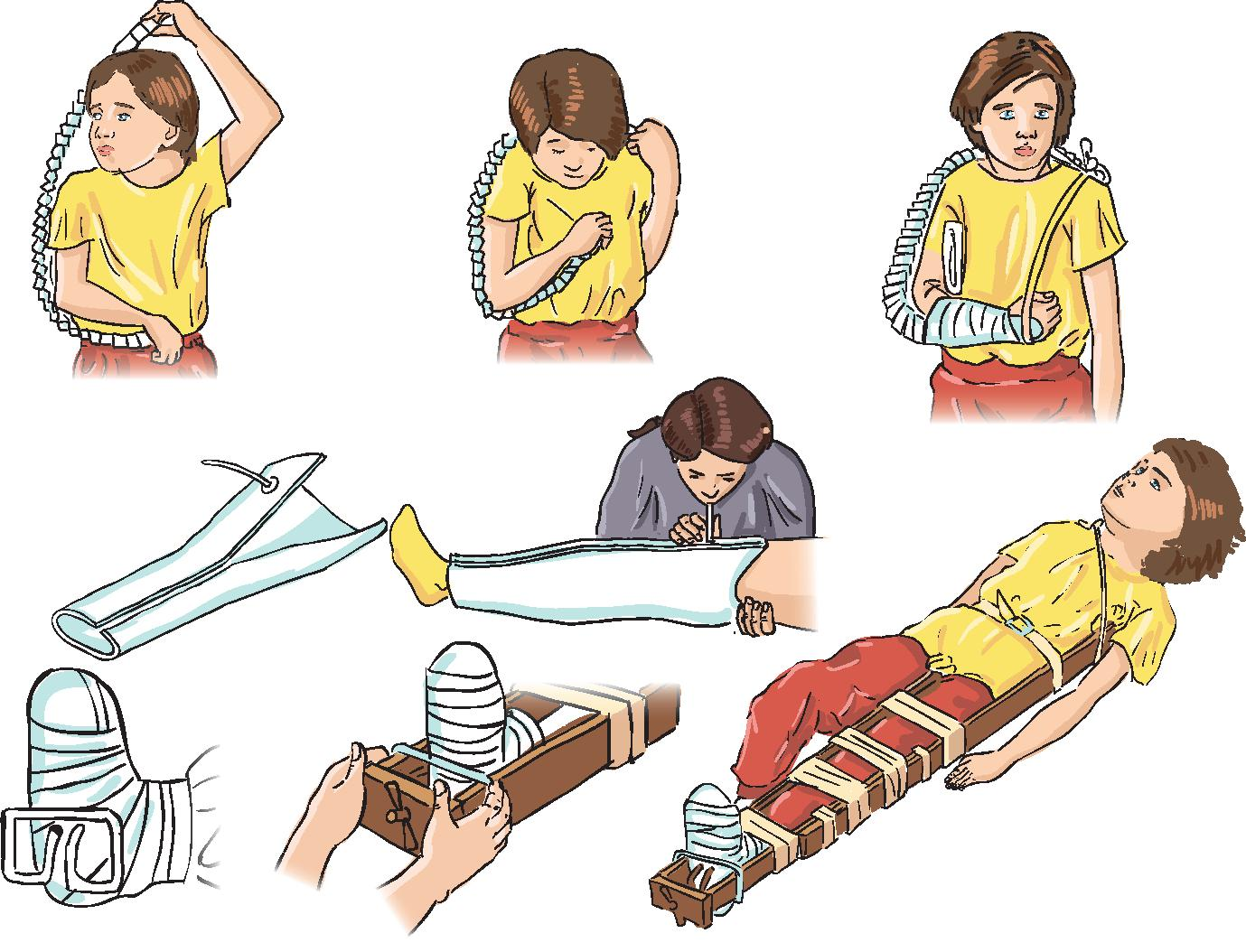 обеспечение неподвижности конечности