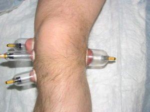 Вакуумное лечение