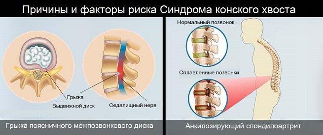 Риск развития синдрома конского хвоста