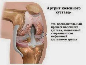 Суставной артрит