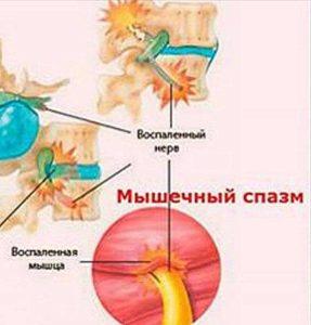 Устранение мышечного спазма