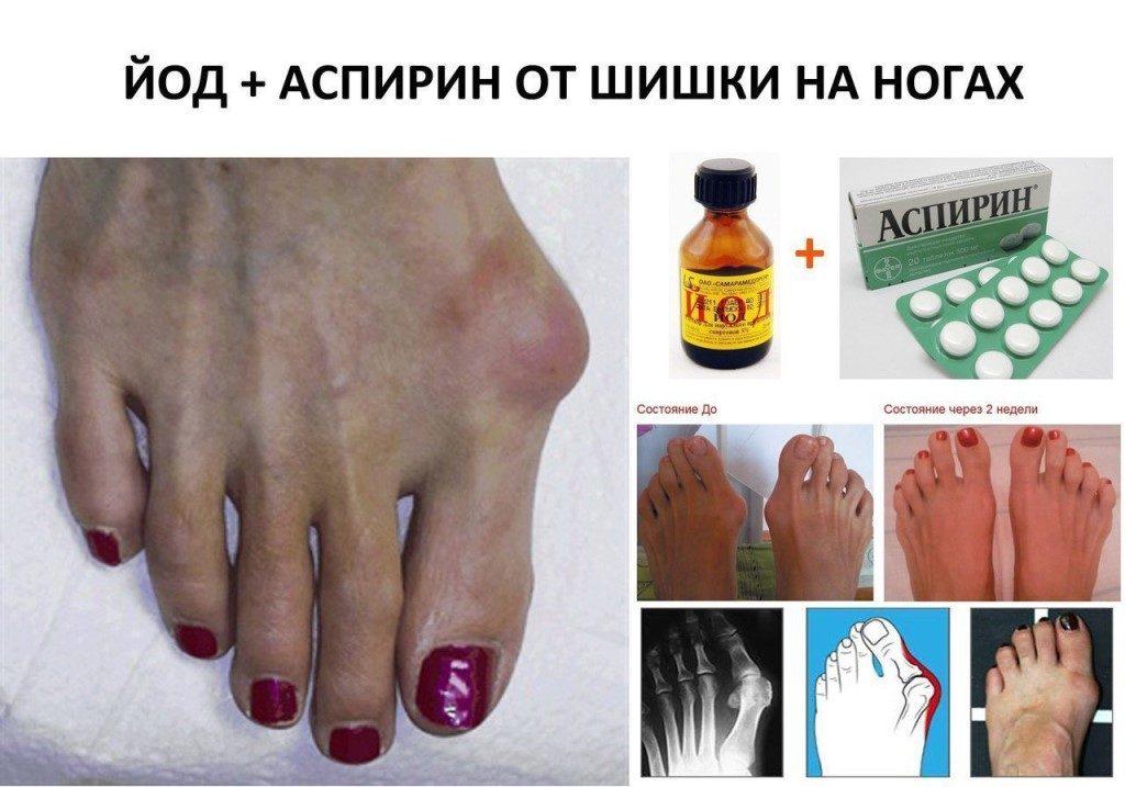 Лечение заболевнаия