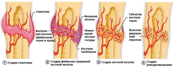 Процесс срастания после перелома