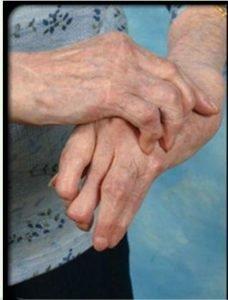 Ограничение подвижности пораженного сустава
