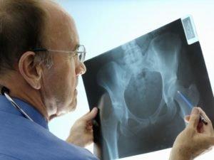 Рентген зоны таза