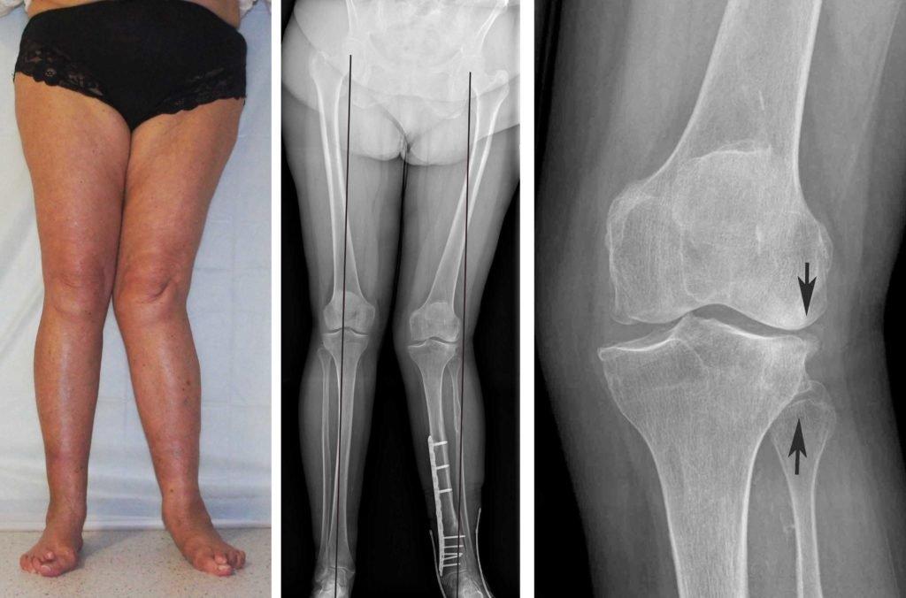 Обследование суставов с помощью рентгена