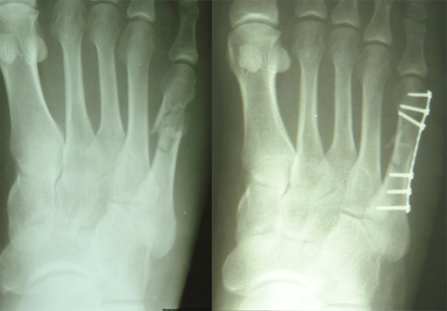 Снимок после операции