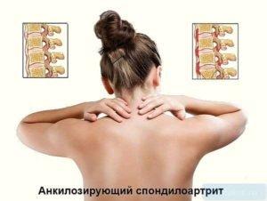 Анклиозирующий спондилоартрит
