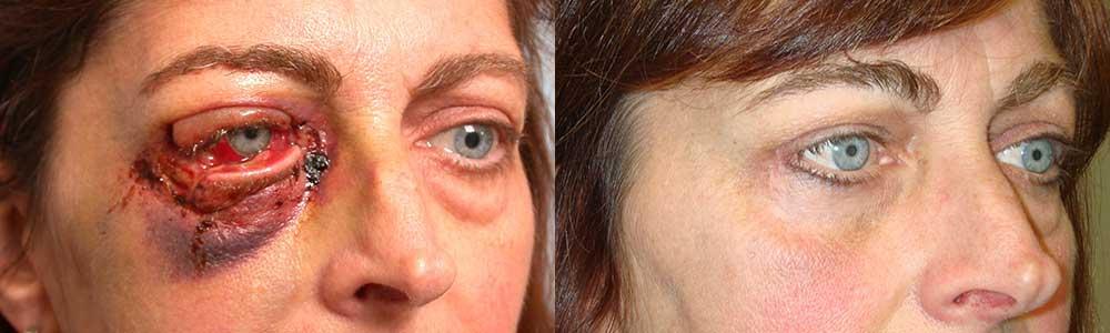 Лечение перелома глазницы