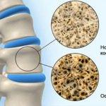 Болезни костной системы