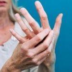 Больные ревматоидным артритом