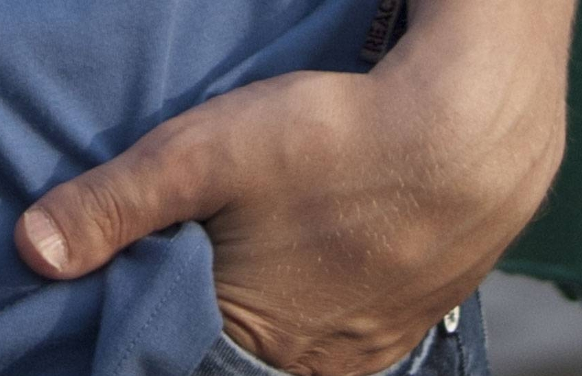 Брахидактилия большого пальца рук