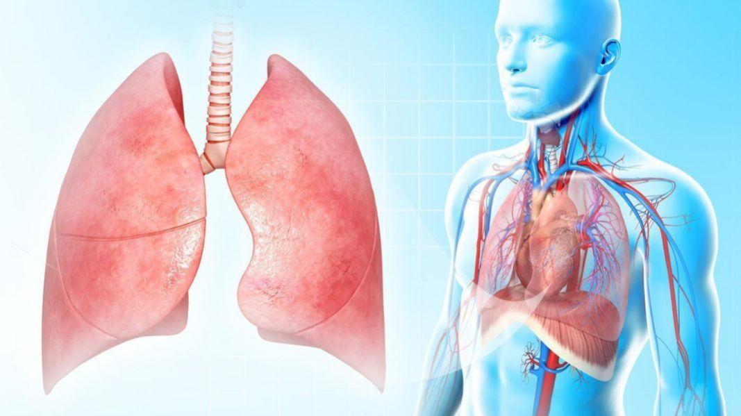 Воспалением легких