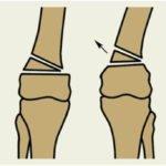 Деформация костей колена