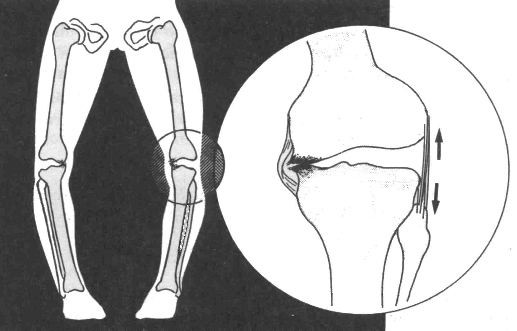 Дисплазия коленного сустава