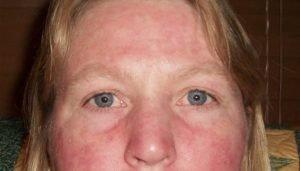 Гиперемия кожных покровов