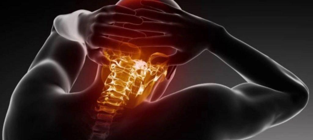 Головные боли при остеохондрозе шеи