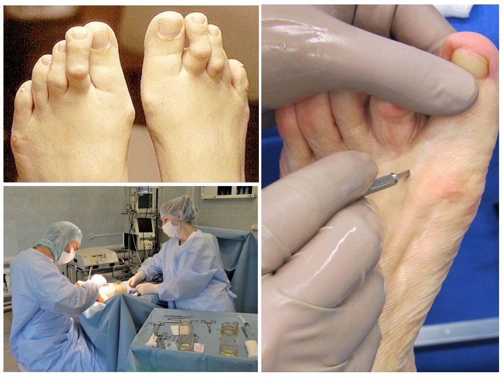 Хирургические способы лечения